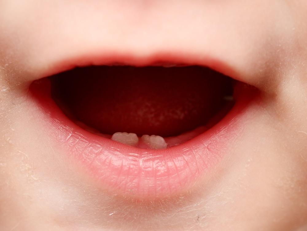 calendario-dentini-da-latte