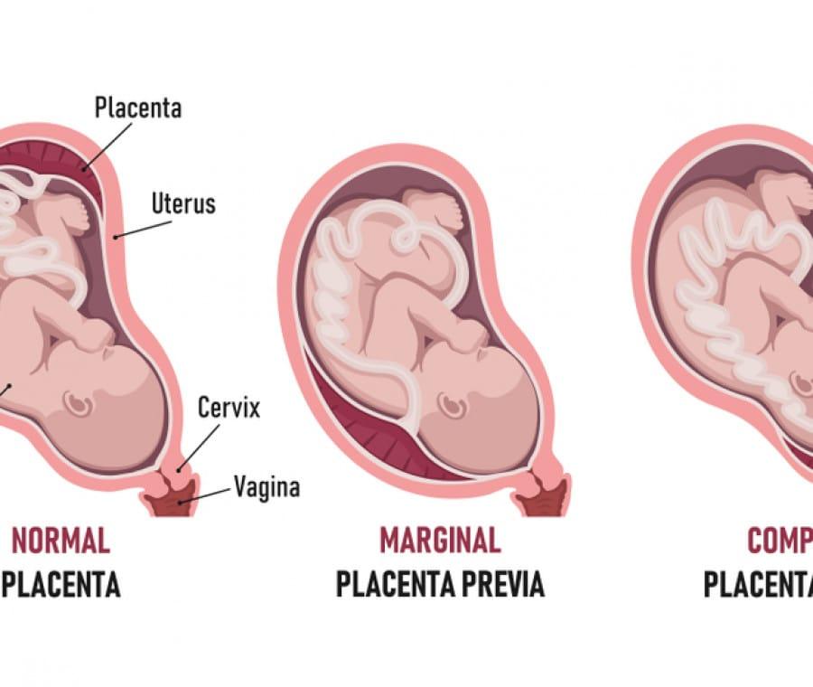 placenta-previa