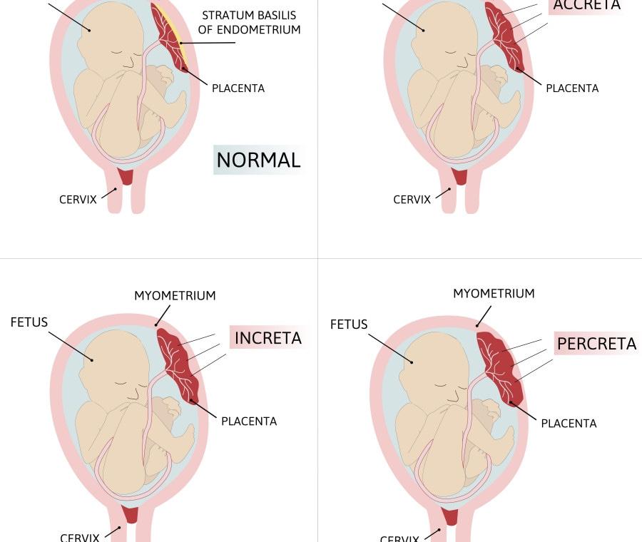 placenta-accreta