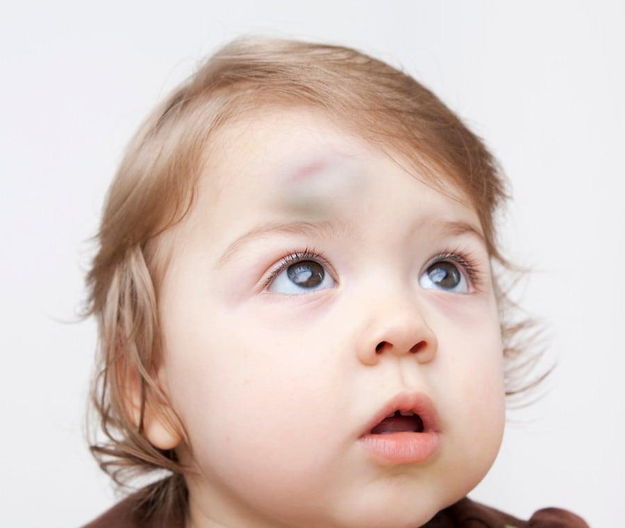 trauma-cranico-bambino