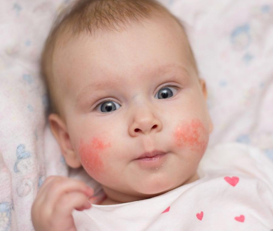 eczema-nei-bambini
