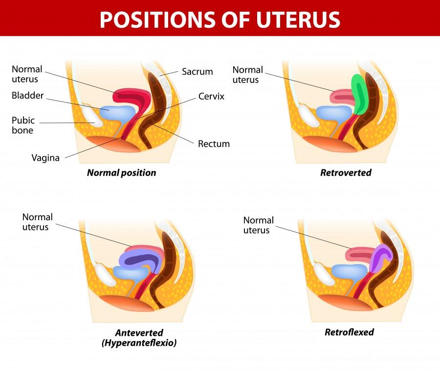 tipi-di-utero