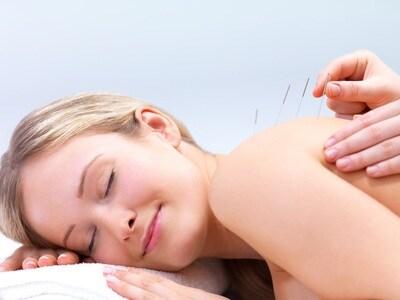 donna-agopuntura