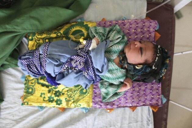 neonato-afghanistan