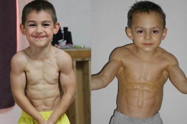 steroidi anabolizzanti muscoli