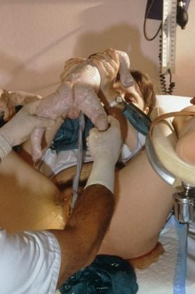 m8100171-woman_giving_birth_in_hospital-spl