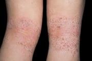 A eczema su mani non passa