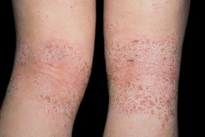 Eczema su pelle della persona
