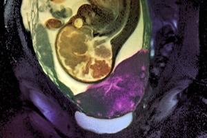 c0071987-placenta_previa_mri_scan
