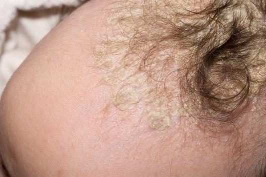 Trattamento da pelle secca a eczema