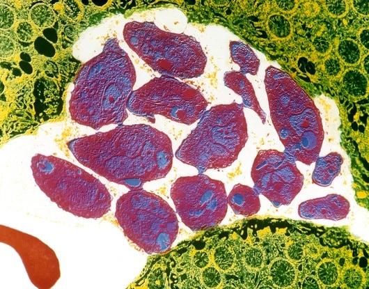 m2700203-toxoplasmosis-spl