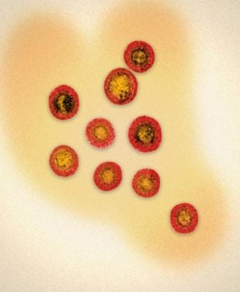 microscopioelettronicomononucleosi