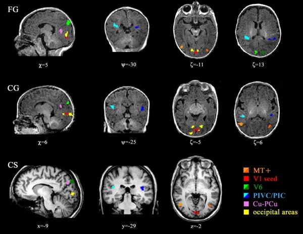 L'immagini delle aree cerebrali adibite al movimento nei neonati (FG e CG)e negli adulti (CS).