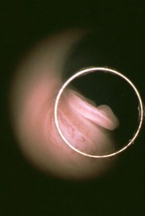 fetoendoscopiafoto9