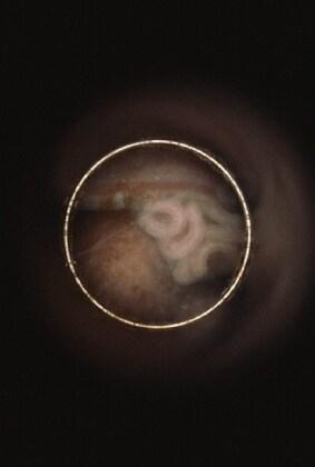 fetoendoscopiafoto12