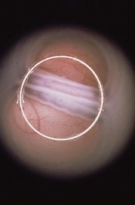 fetoendoscopiafoto14