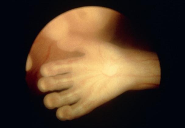 fetoendoscopiafoto15
