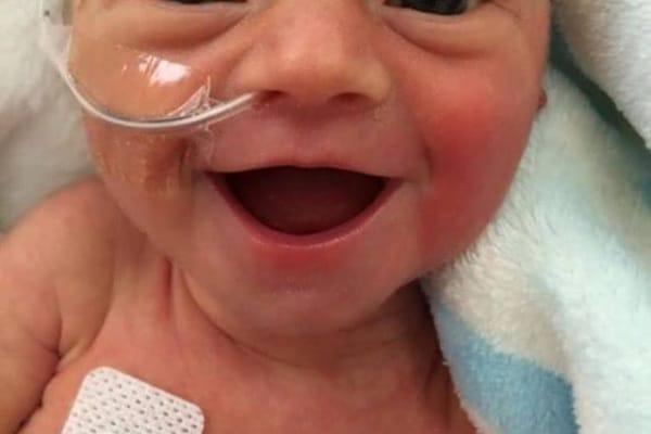 Il dolce sorriso della bimba prematura: la foto pubblicata da una mamma americana su Facebook