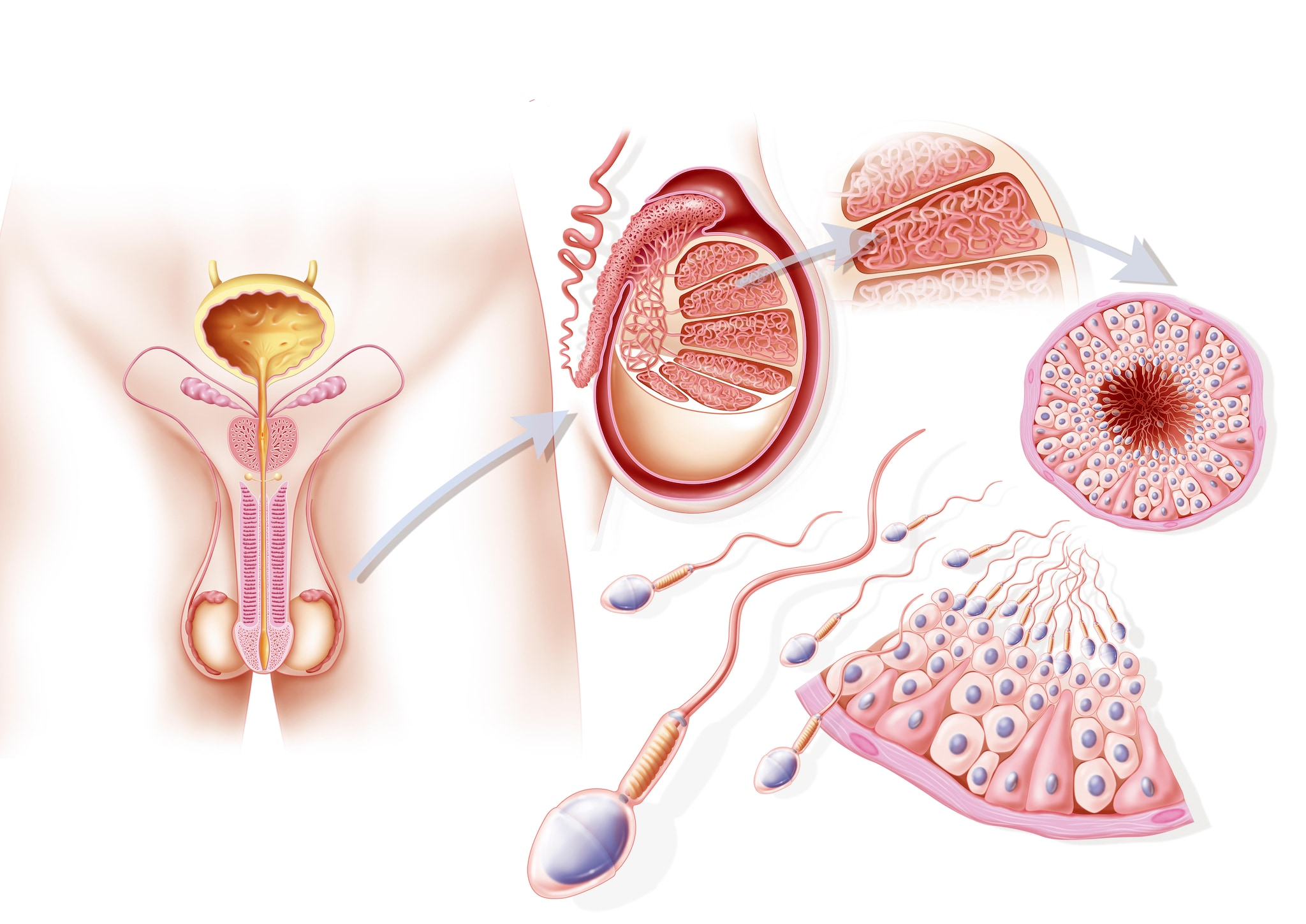 prostata così come significa piccola terza spunzone del este