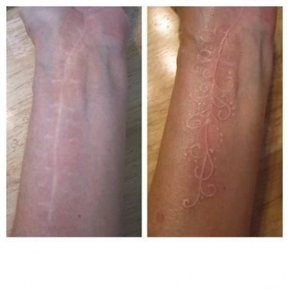 tatuaggi-cicatrici-13