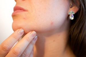 acne.600