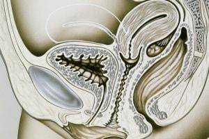 uteroretroverso.600