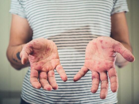 malattia-mani-piedi