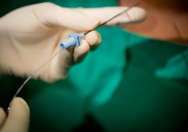 epidurale.600