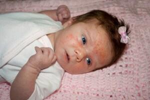 acne_neonatale.600