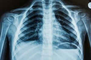 polmonite_da_inalazione