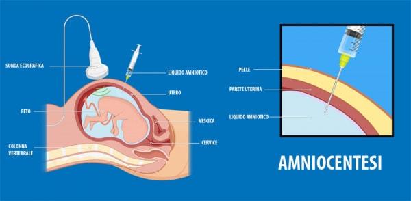amniocentesi