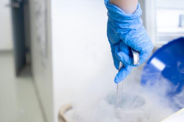 congelamento ovociti, crioconservazione ovociti, social egg freezing