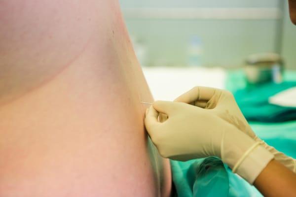 epidurale_parto.600